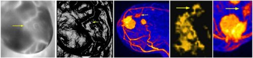 Figure 6. STI visualized cluster of three malignant tumors compared to MRI image. Arrow points to smallest tumor, which measured approximately 1.5 mm in pathological examination.